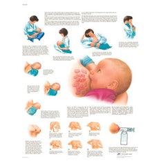 Lámina 3B Lactancia Materna